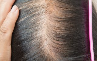 New Hair Clinic Noticing the Signs of Hair Loss