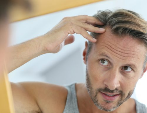 Why Your Parents Could Be to Blame for Your Hair Loss