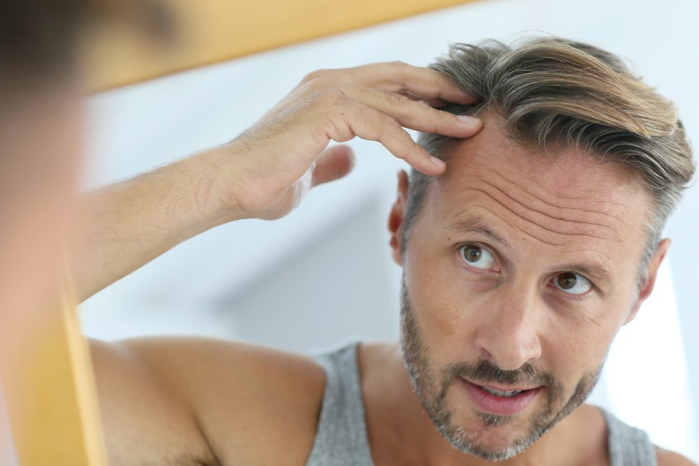Why Your Parents Could Be to Blame for Male Pattern Baldness