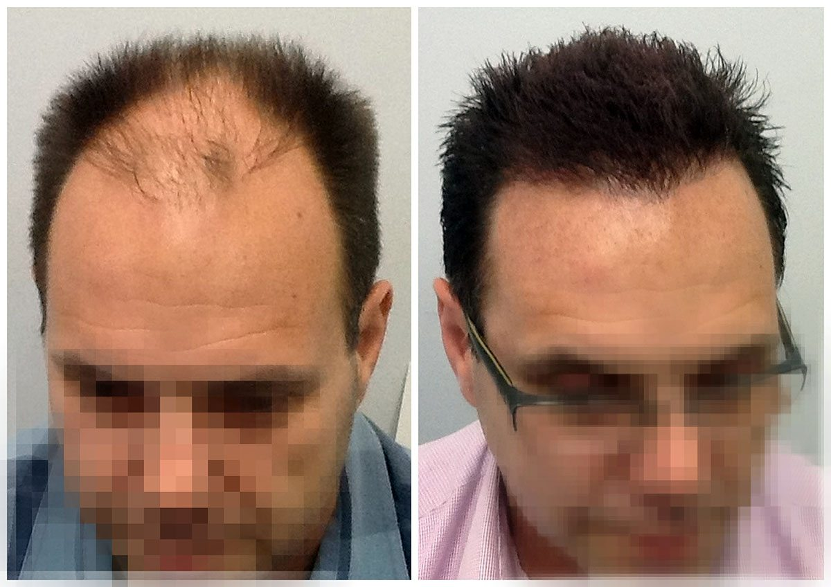 new hair clinic result16 new hair clinic