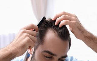 Detecting the Signs of Hair Loss